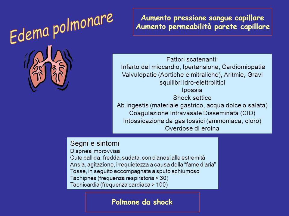 Edema polmonare Aumento pressione sangue capillare