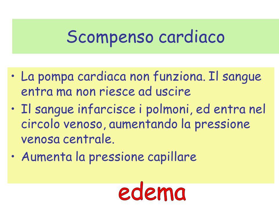 Scompenso cardiaco edema