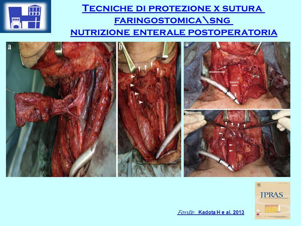 Tecniche di protezione x sutura faringostomica\sng