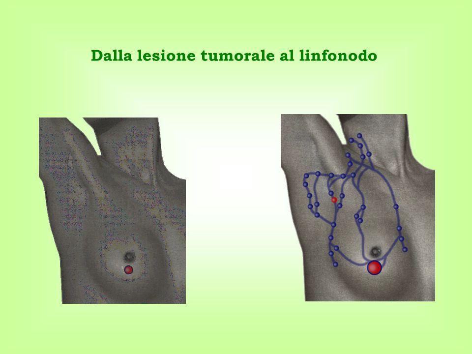 Dalla lesione tumorale al linfonodo