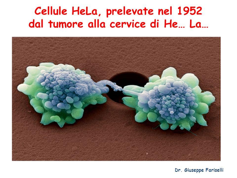 Cellule HeLa, prelevate nel 1952 dal tumore alla cervice di He… La…