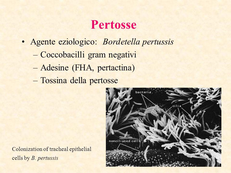 Pertosse Agente eziologico: Bordetella pertussis