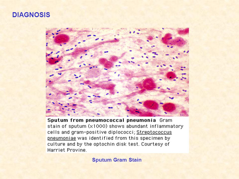 DIAGNOSIS Sputum Gram Stain