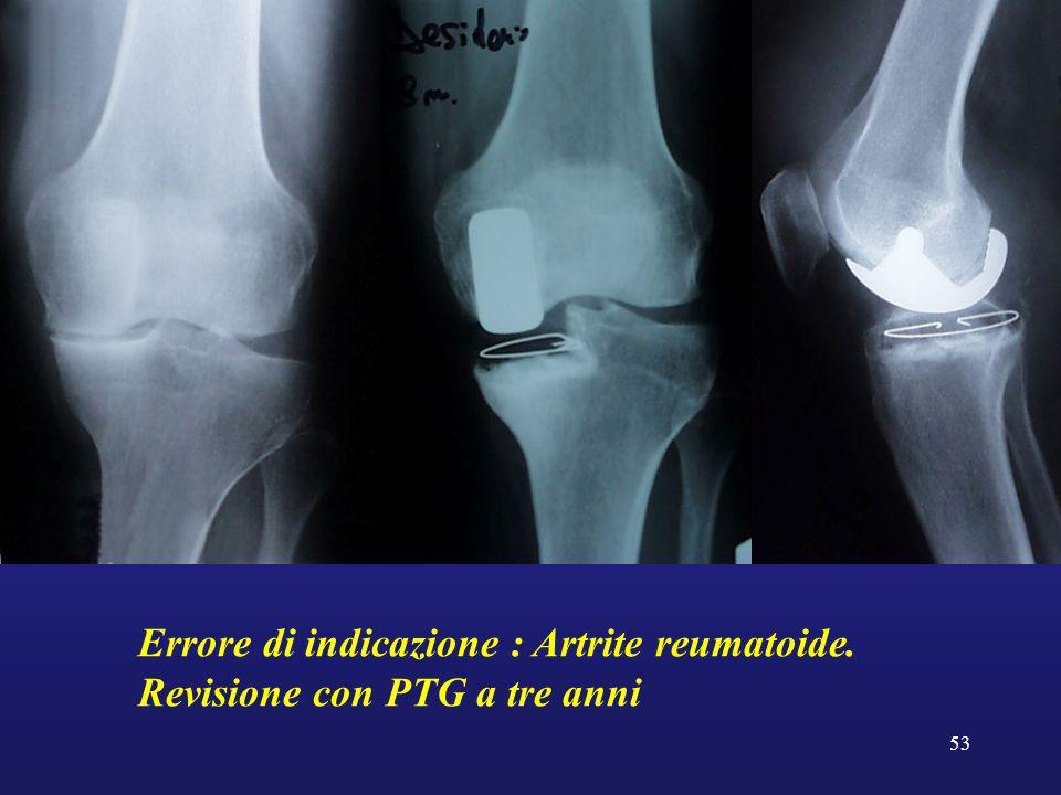 Errore di indicazione : Artrite reumatoide.