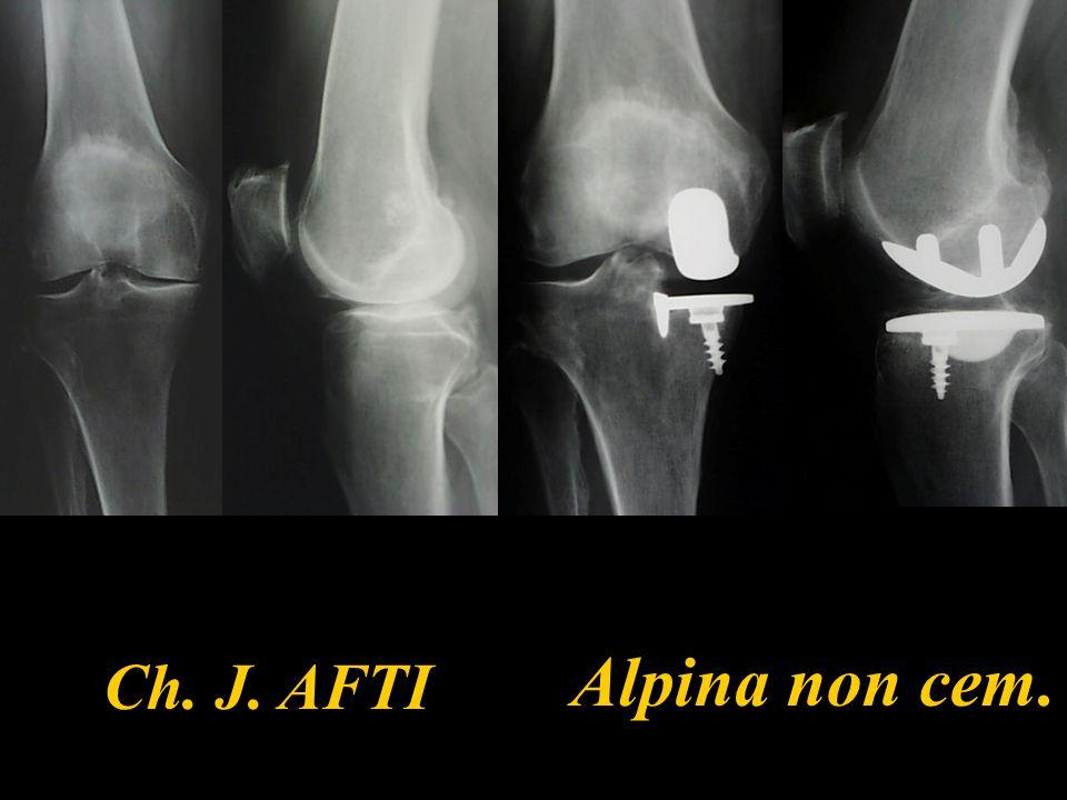 Alpina non cem. Ch. J. AFTI