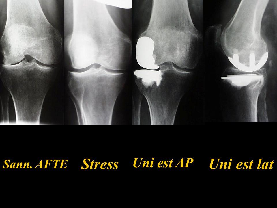 Stress Uni est AP Uni est lat Sann. AFTE