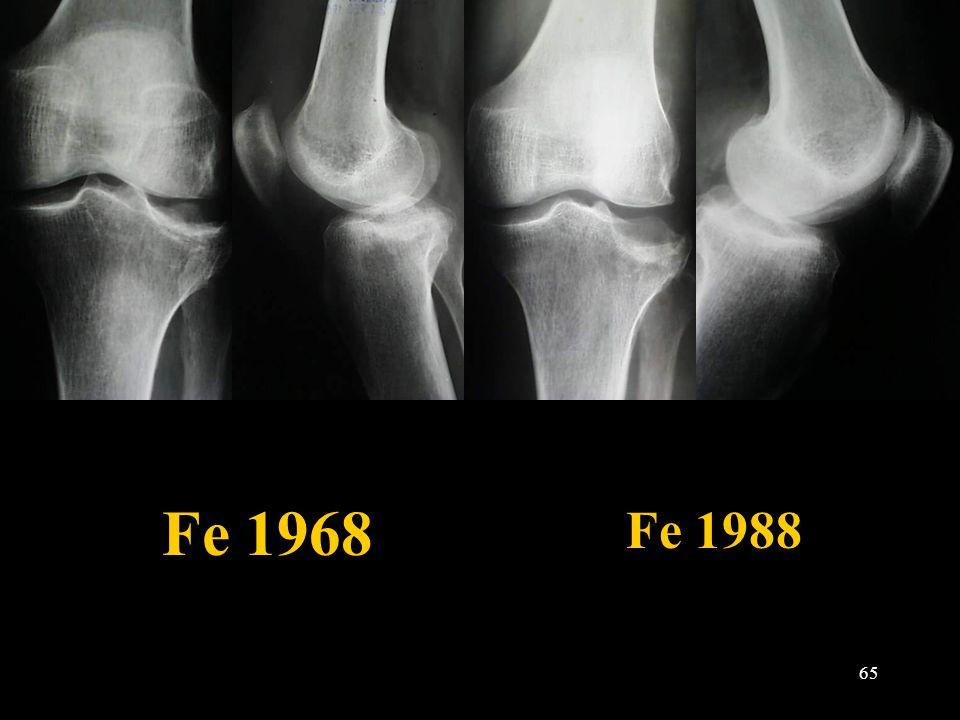 Fe 1968 Fe 1988