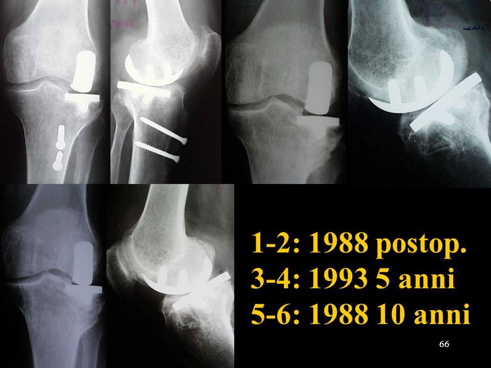 1-2: 1988 postop. 3-4: 1993 5 anni 5-6: 1988 10 anni