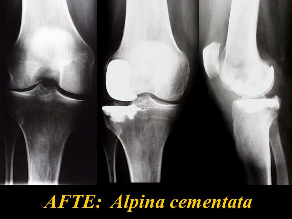 AFTE: Alpina cementata