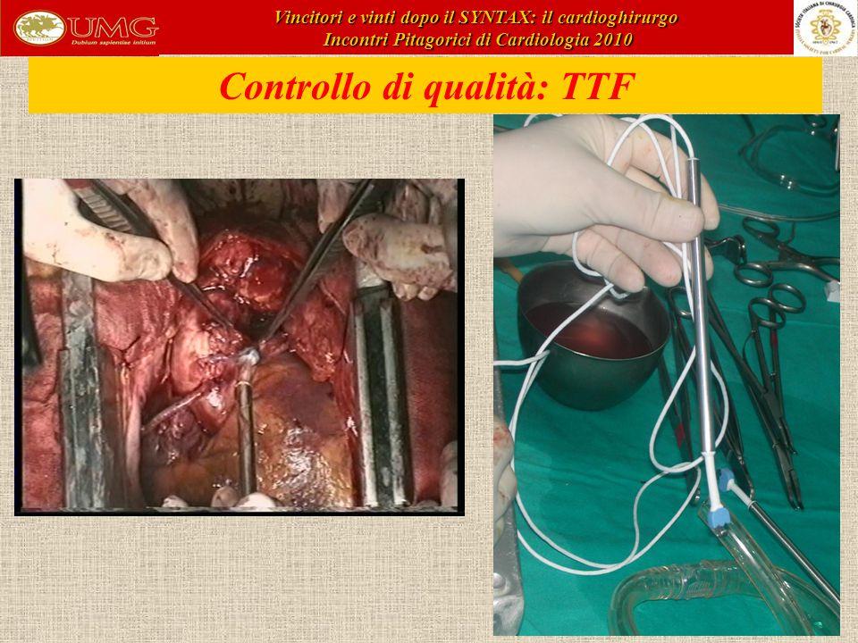 Controllo di qualità: TTF