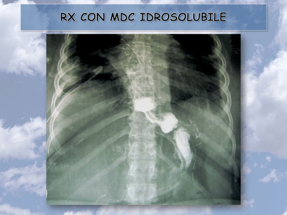 RX CON MDC IDROSOLUBILE