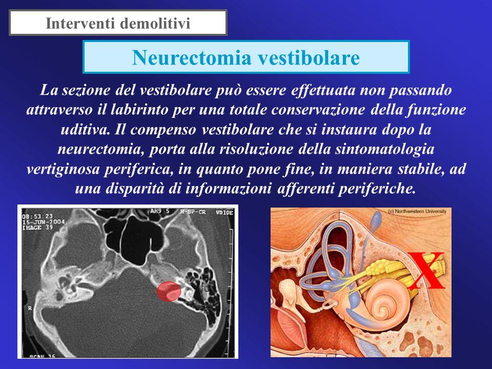 Interventi demolitivi Neurectomia vestibolare
