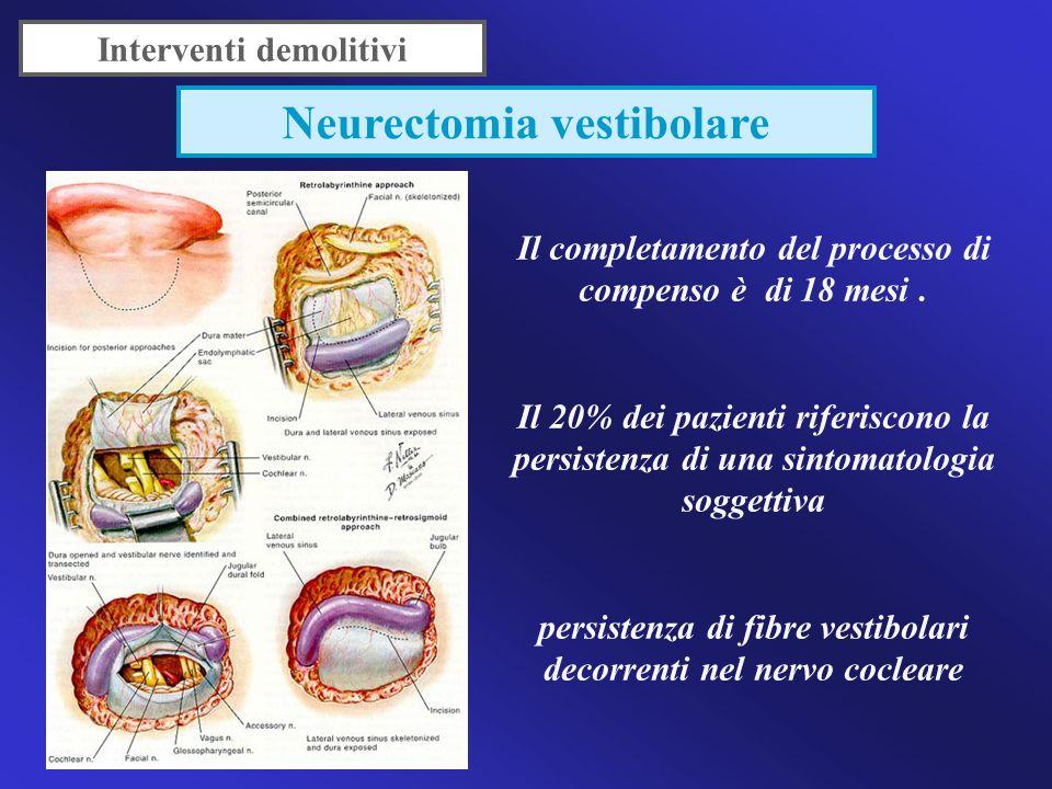 Neurectomia vestibolare