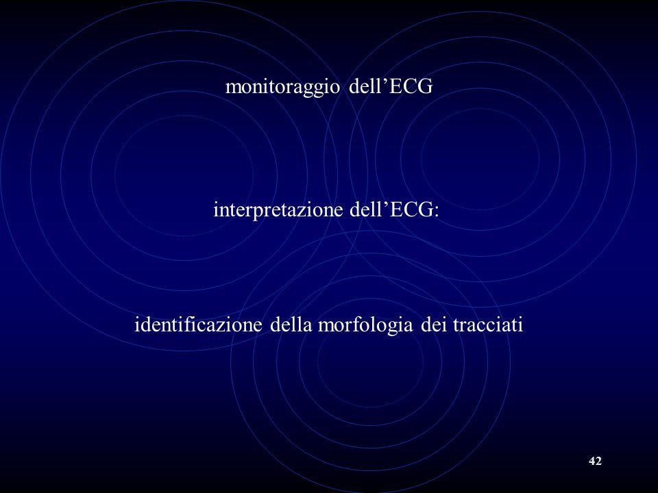 monitoraggio dell'ECG