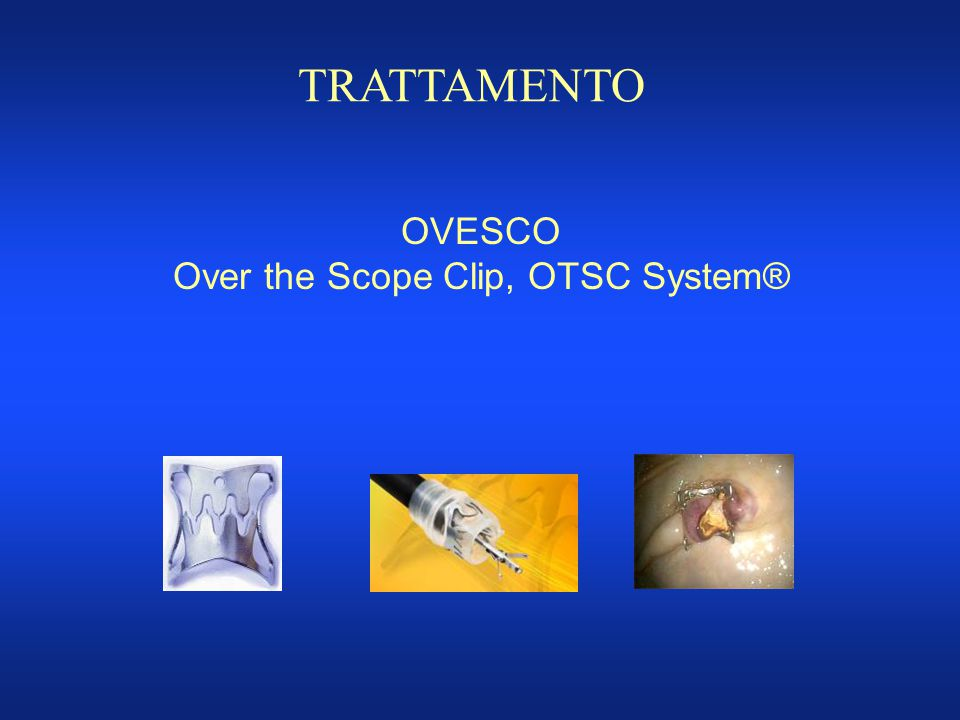 Over the Scope Clip, OTSC System®