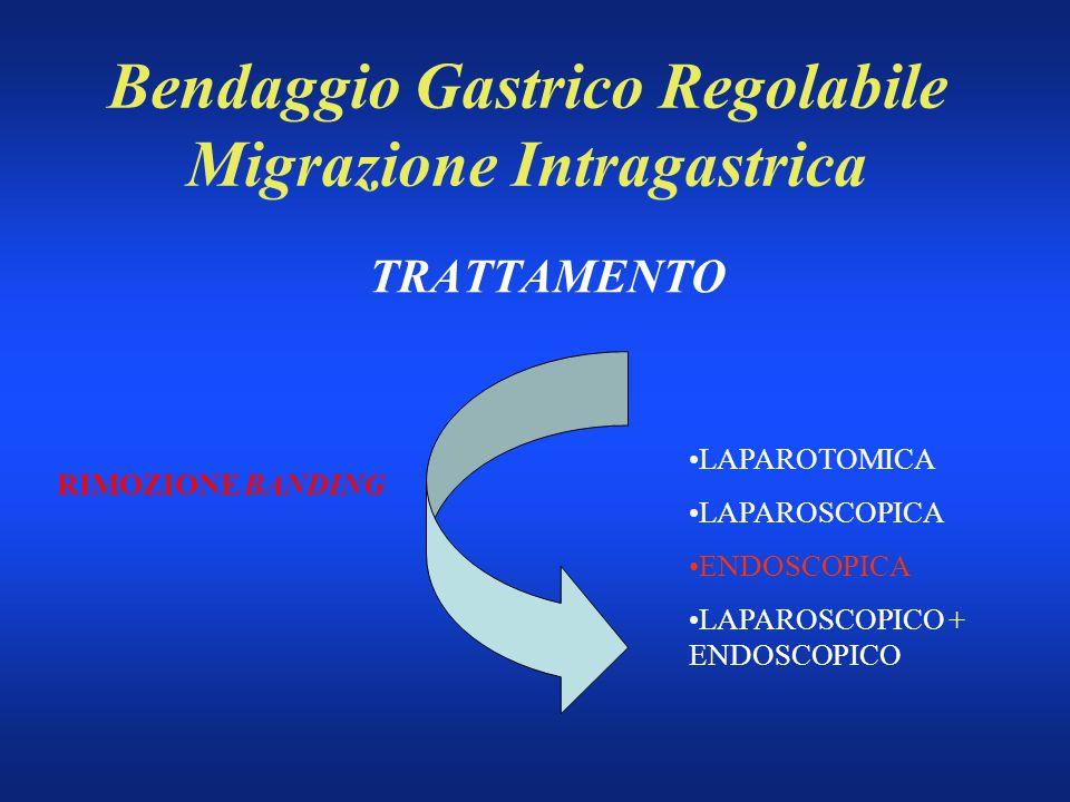 Bendaggio Gastrico Regolabile Migrazione Intragastrica