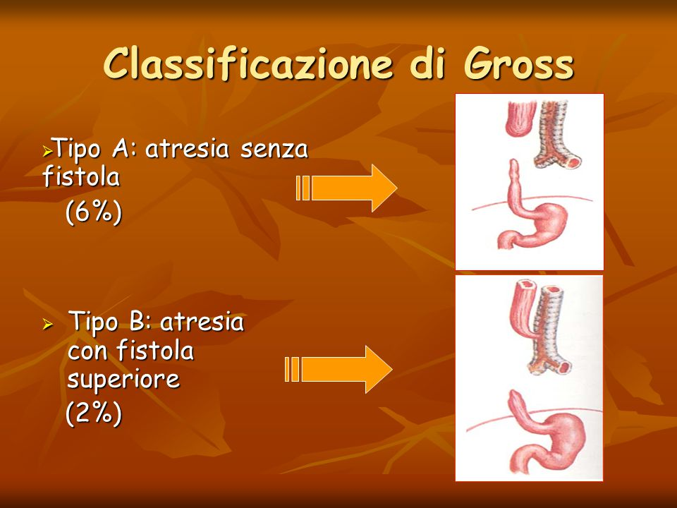 Classificazione di Gross