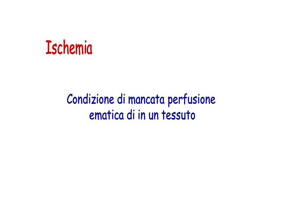 Ischemia Condizione di mancata perfusione ematica di in un tessuto