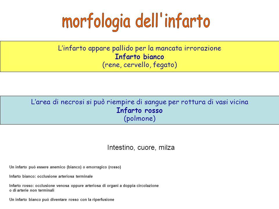 morfologia dell infarto