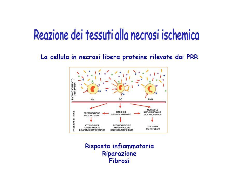 Reazione dei tessuti alla necrosi ischemica