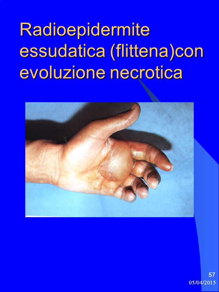 Radioepidermite essudatica (flittena)con evoluzione necrotica