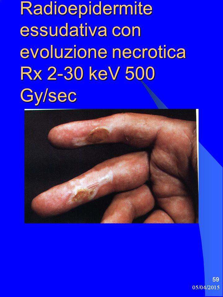 Radioepidermite essudativa con evoluzione necrotica Rx 2-30 keV 500 Gy/sec