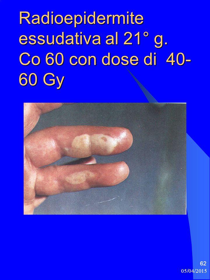 Radioepidermite essudativa al 21° g. Co 60 con dose di 40-60 Gy
