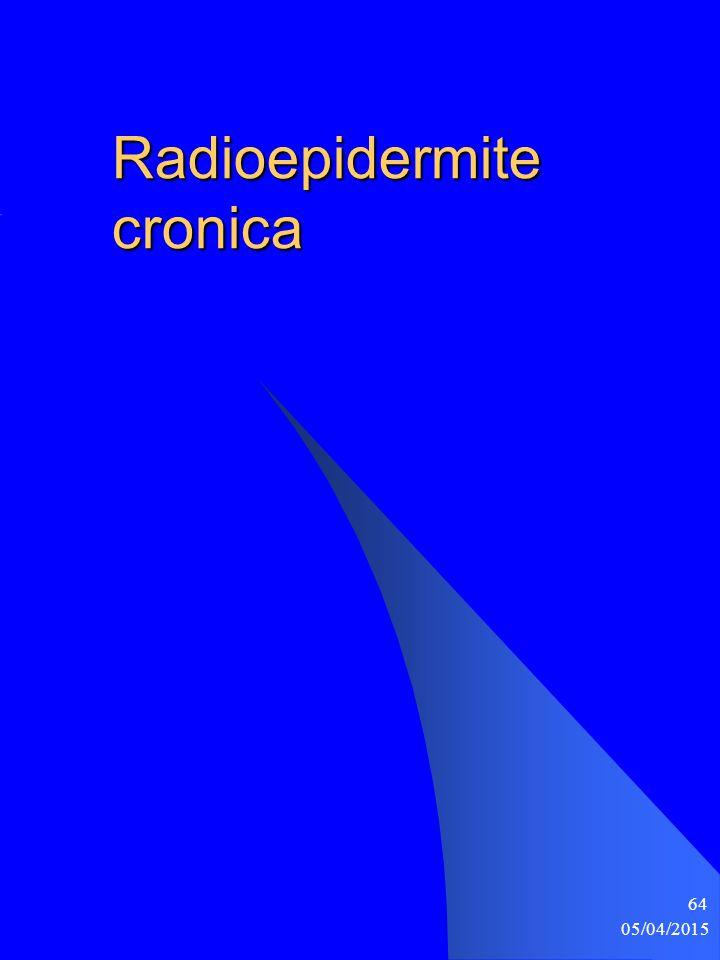 Radioepidermite cronica