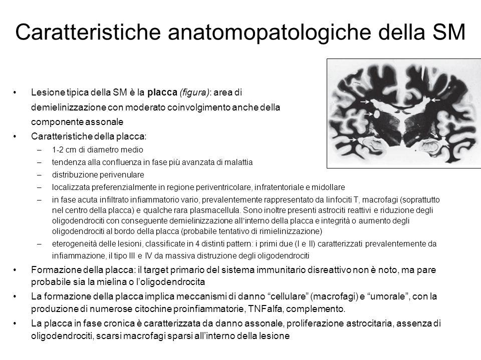 Caratteristiche anatomopatologiche della SM