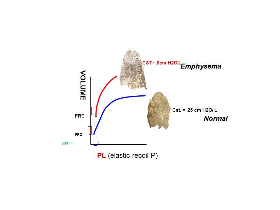Emphysema VOLUME Normal PL (elastic recoil P) CST= .8cm H2O/L