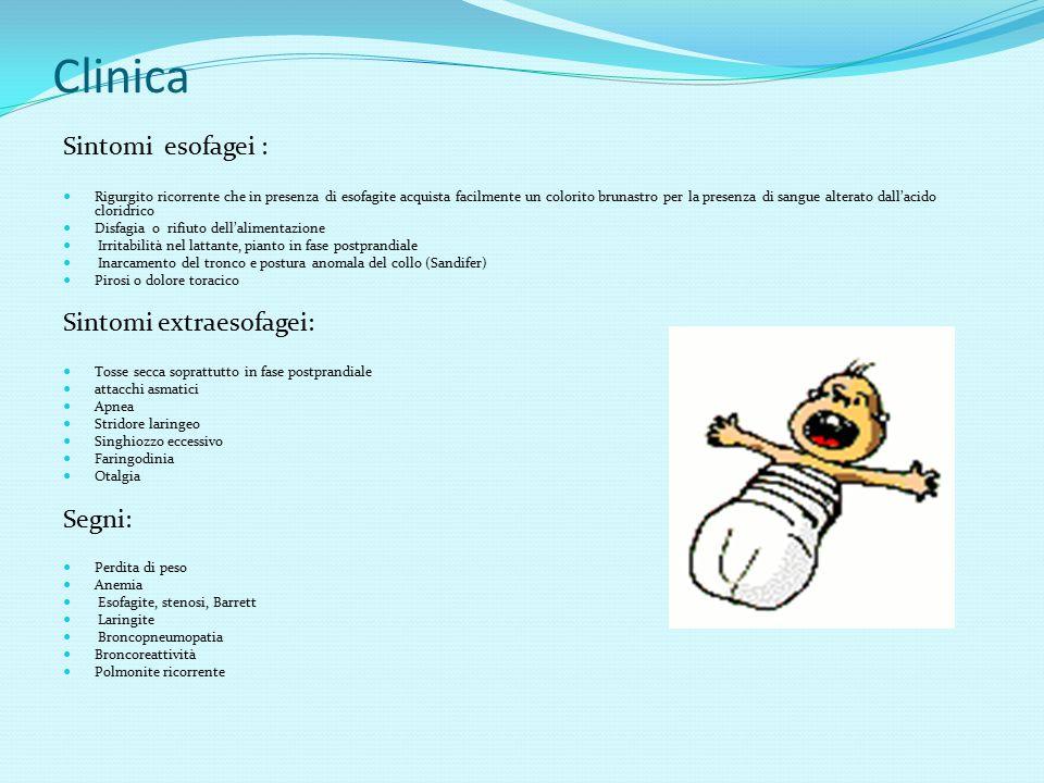 Clinica Sintomi esofagei : Sintomi extraesofagei: Segni:
