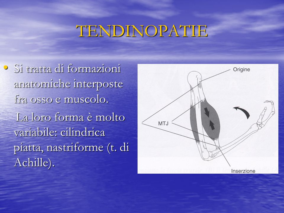 TENDINOPATIE Si tratta di formazioni anatomiche interposte fra osso e muscolo.