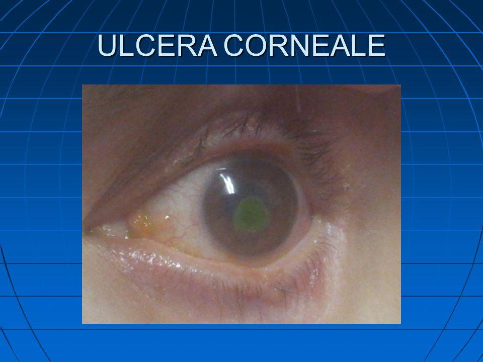 ULCERA CORNEALE