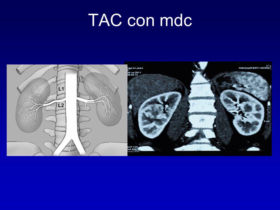 TAC con mdc