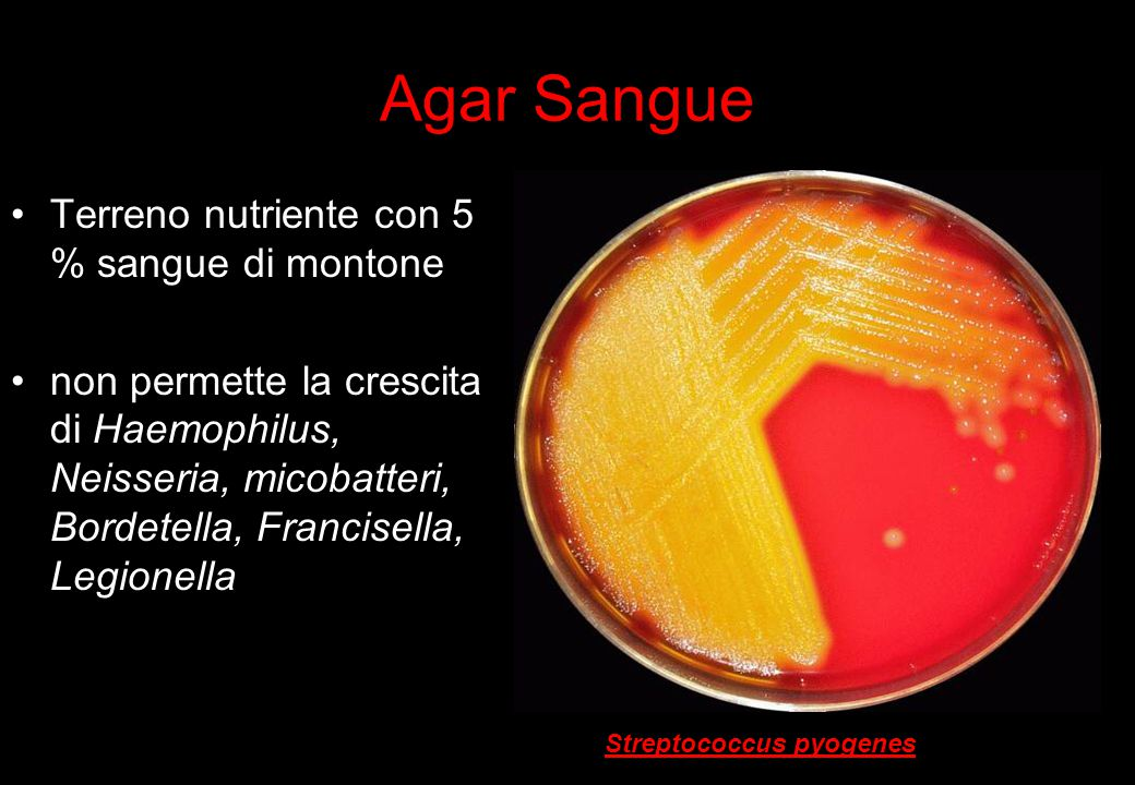 Agar Sangue Terreno nutriente con 5 % sangue di montone