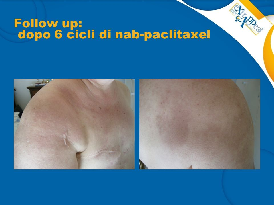 Follow up: dopo 6 cicli di nab-paclitaxel