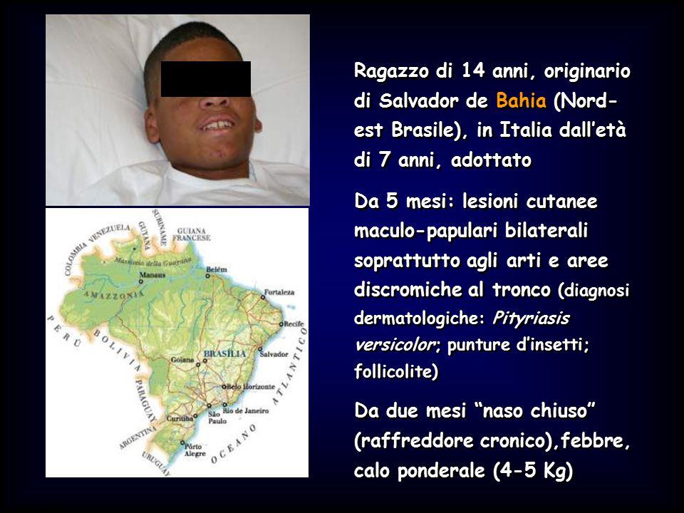 Ragazzo di 14 anni, originario di Salvador de Bahia (Nord-est Brasile), in Italia dall'età di 7 anni, adottato