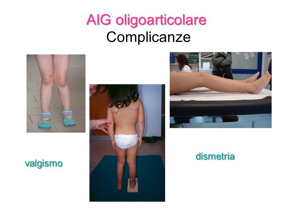 AIG oligoarticolare Complicanze