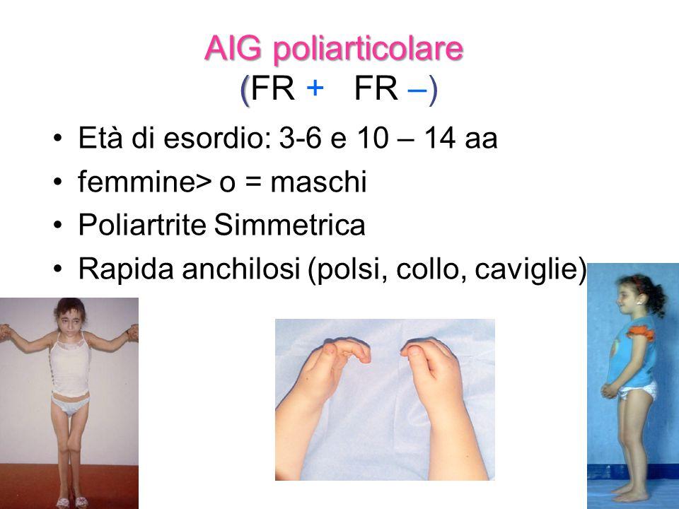 AIG poliarticolare (FR + FR –)