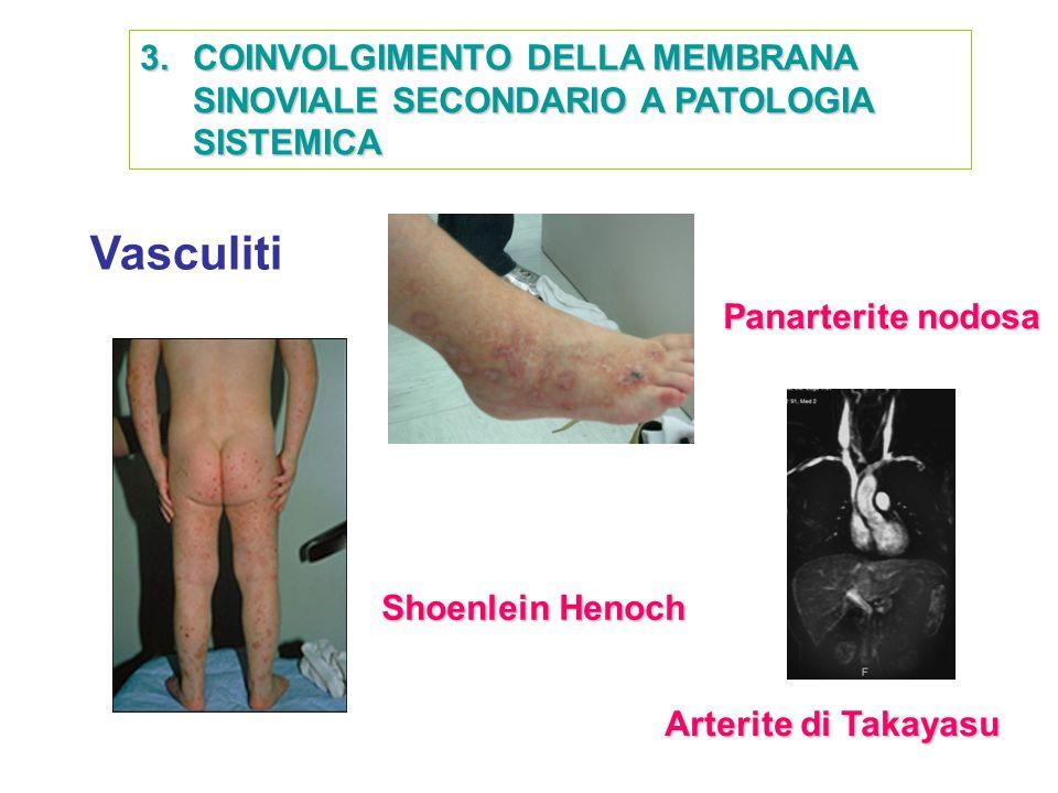 COINVOLGIMENTO DELLA MEMBRANA SINOVIALE SECONDARIO A PATOLOGIA SISTEMICA
