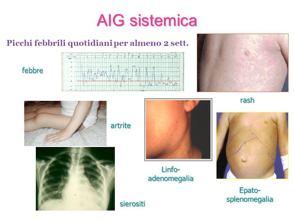 AIG sistemica Picchi febbrili quotidiani per almeno 2 sett. febbre
