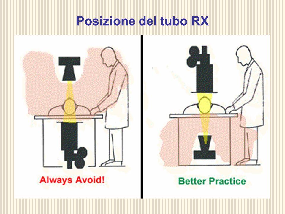 Posizione del tubo RX