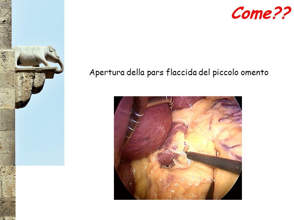 Apertura della pars flaccida del piccolo omento
