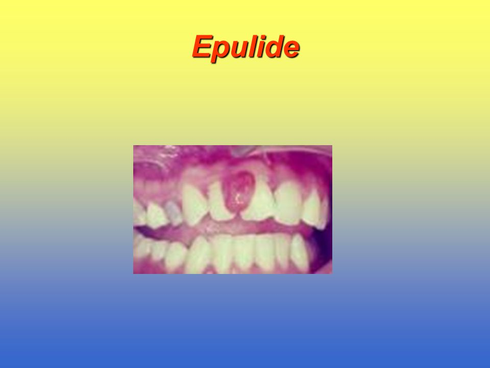 Epulide