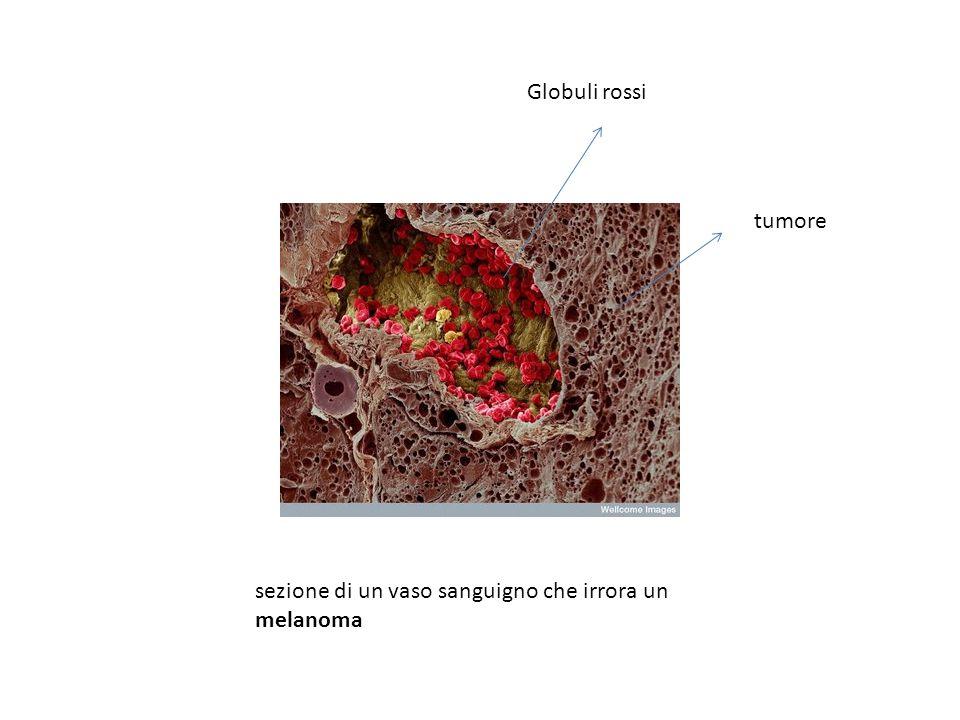 Globuli rossi tumore sezione di un vaso sanguigno che irrora un melanoma