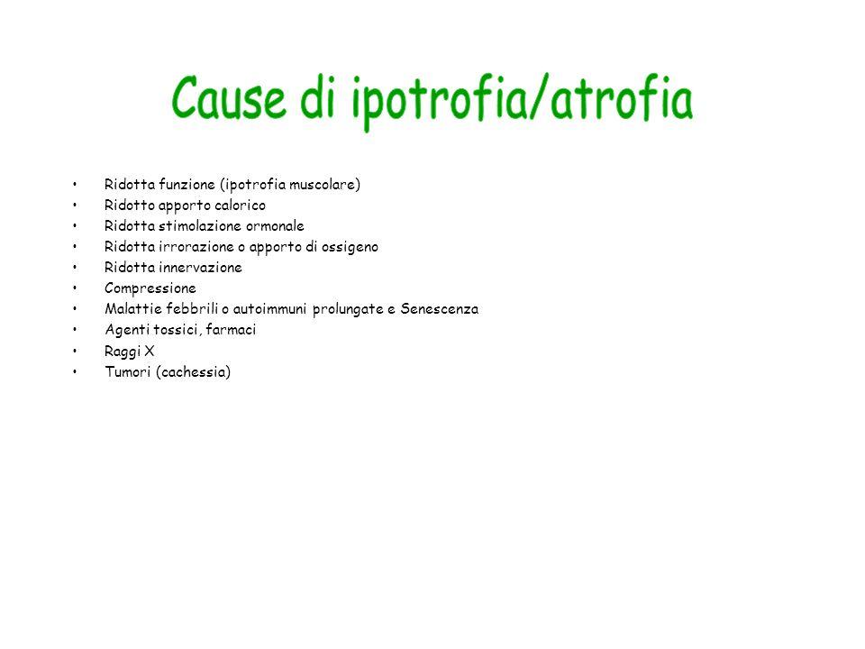 Cause di ipotrofia/atrofia