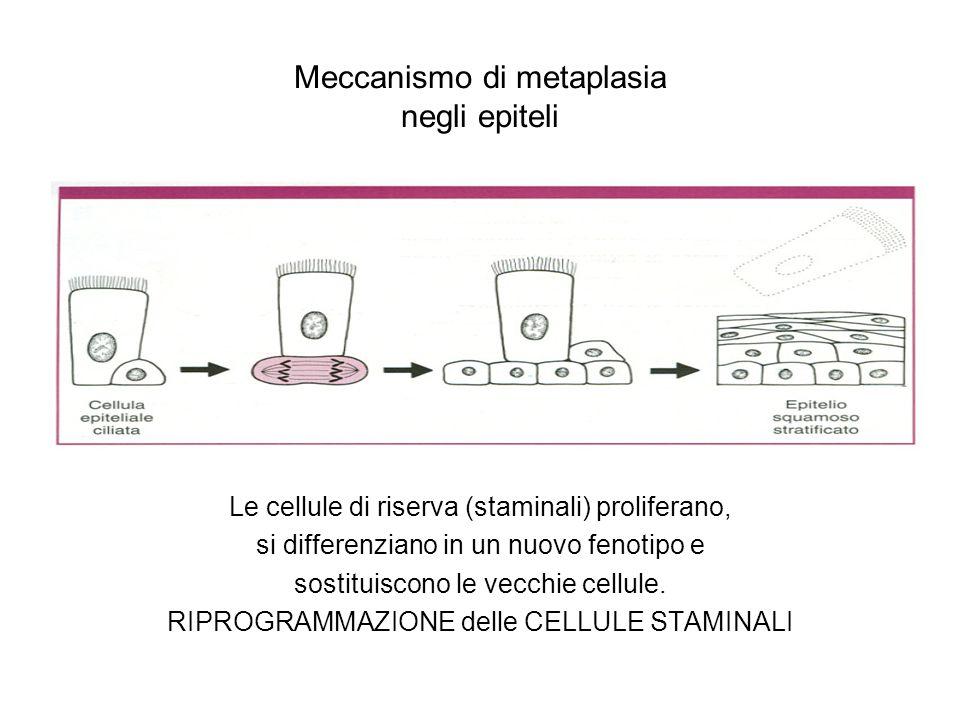 Meccanismo di metaplasia negli epiteli