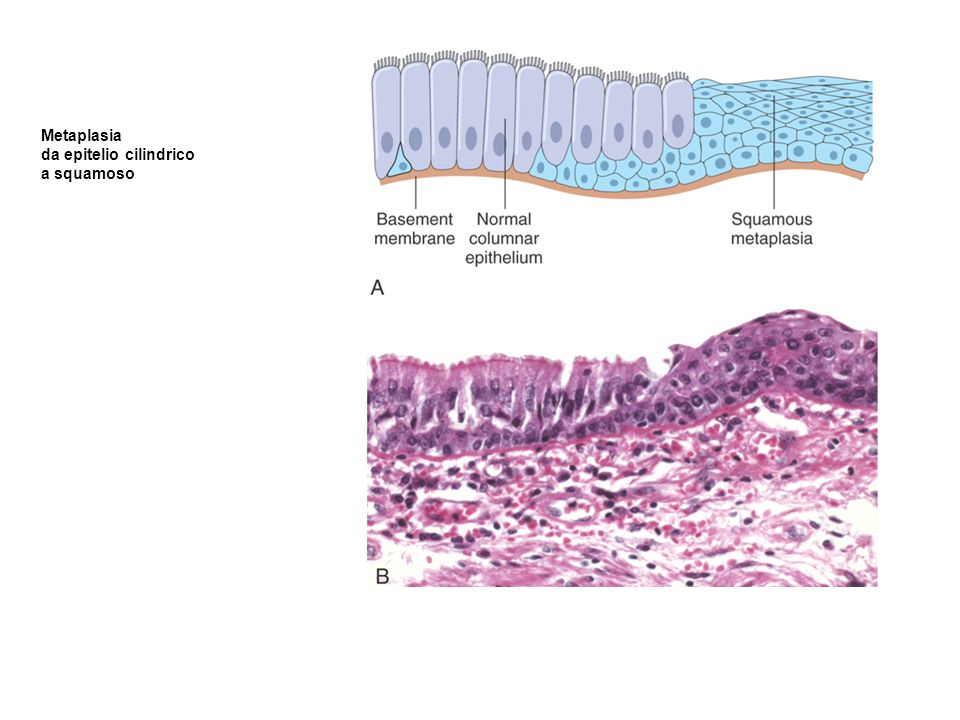 Metaplasia da epitelio cilindrico a squamoso