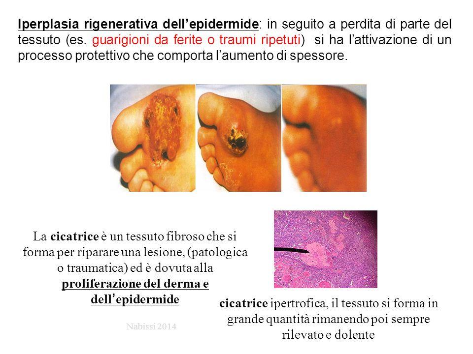 Iperplasia rigenerativa dell'epidermide: in seguito a perdita di parte del tessuto (es. guarigioni da ferite o traumi ripetuti) si ha l'attivazione di un processo protettivo che comporta l'aumento di spessore.