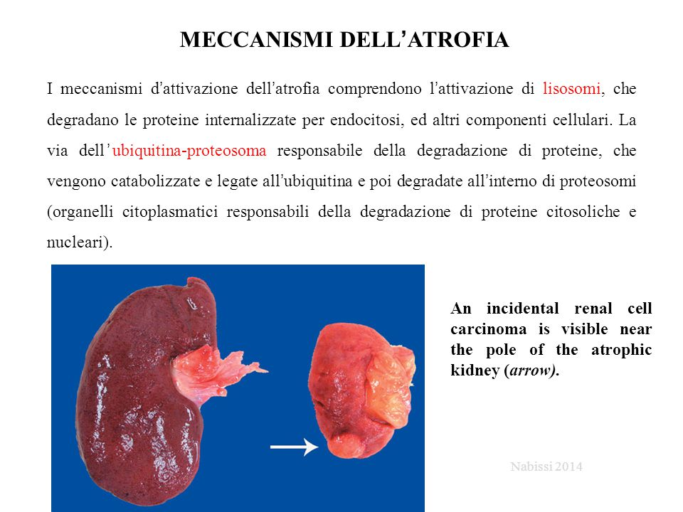 MECCANISMI DELL'ATROFIA
